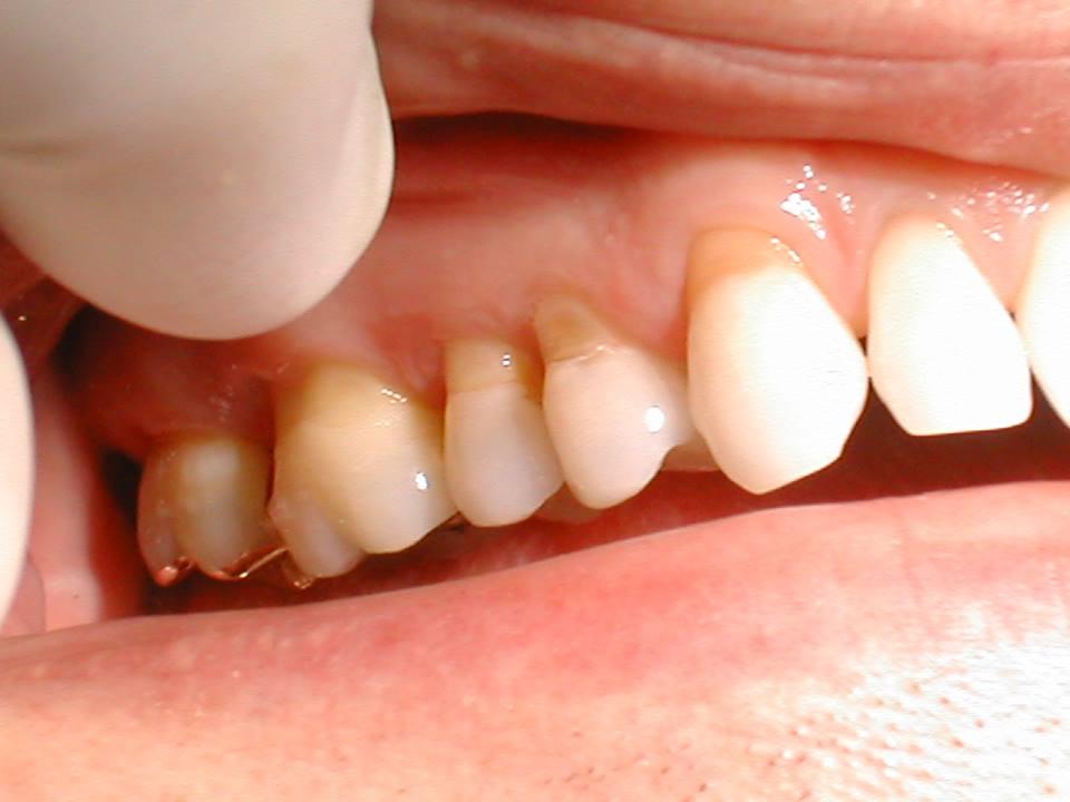Imate občutljiv zobe